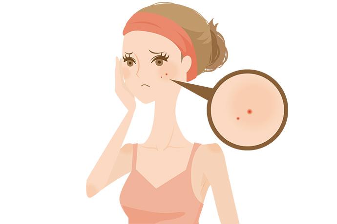 大人ニキビ、オイリー肌も泡洗顔が原因かも